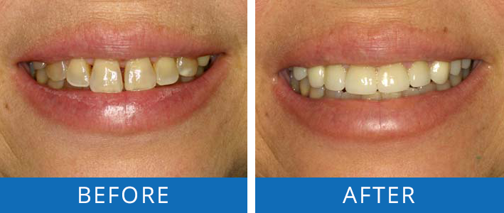 Cosmetic Dentistry Smile Makeover2