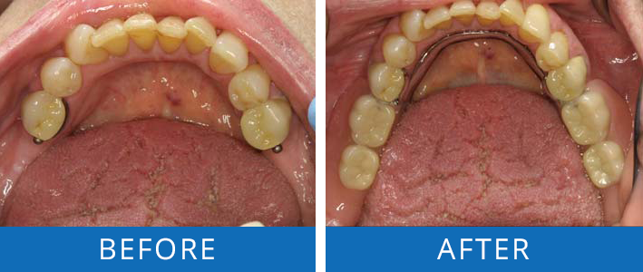 Denture Partial