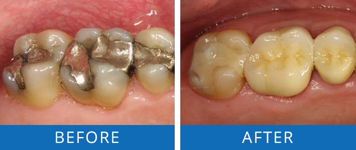 Restorative Dentistry-Back Teeth