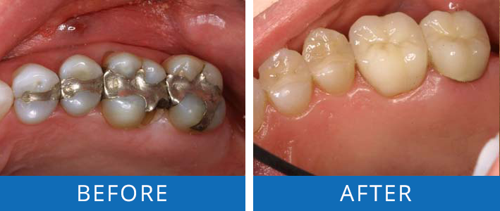 Restorative Dentistry-Back Teeth2