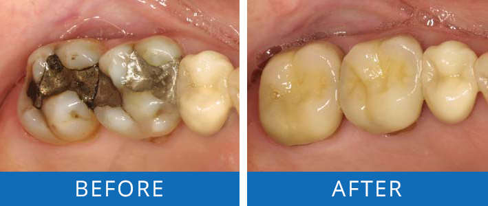 Restoring-Teeth-with-Dental-Crowns