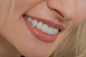 VENEERS SIDE SHOT Small