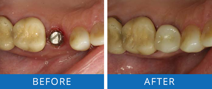 dental-implant-crown