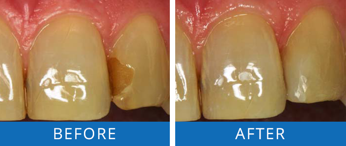 replacing-discolored-filling